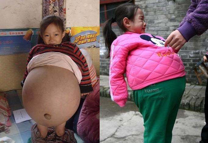 Photos: 4 year old girl 9 months pregnant with brother's twins