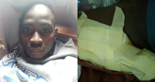 Nurses Dressed Man's Wounds With Masking Tape (Photos)